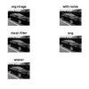 شبیه سازی حذف نویز تصویر به کمک فیلترهای مختلف با متلب