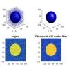 شبیه سازی حذف نویز به کمک فیلتر میانه سه بعدی با متلب