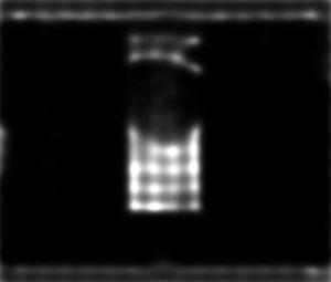 شبیه سازی کاهش نویز لکه ای تصاویر سونوگرافی با متلب
