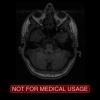 شبیه سازی قطعه بندی تصاویر MRI مغز با متلب