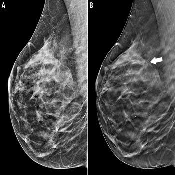 شبیه سازی آموزش پرسپترون چند لایه mlp برای دیتابیس سرطان سینه با متلب