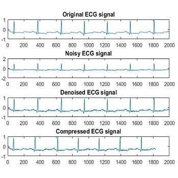 شبیه سازی فشرده سازی و حذف نویز سیگنال ECG با متلب