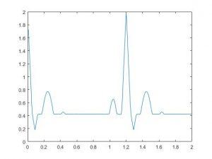 شبیه سازی و تولید سیگنال ECG با متلب