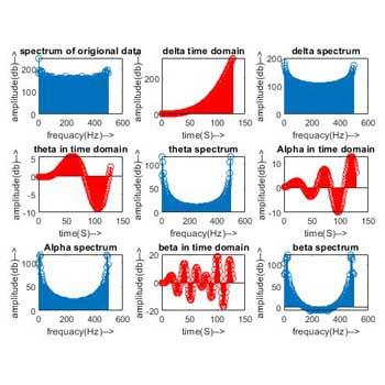 شبیه سازی آنالیز و پردازش سیگنال مغزی EEG در متلب