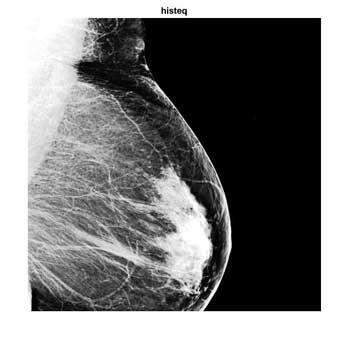 شبیه سازی مقاله بهبود تصاویر دیجیتال ماموگرافی در متلب